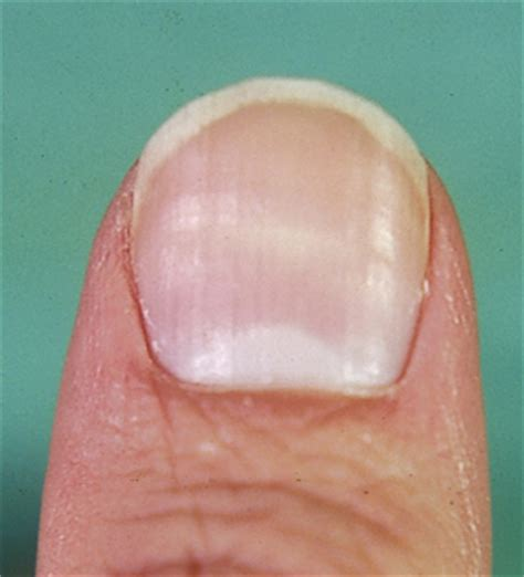 Finger Nail by Image Gallery Hypothyroidism Fingernails