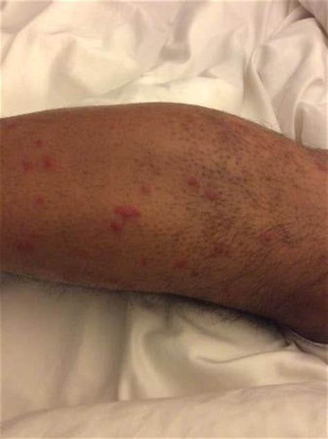 bed bug bites on legs leg full with bed bug bites picture of sheraton suites