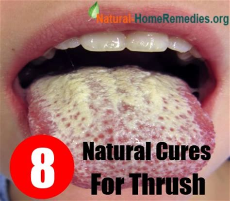 treating thrush in adults literaturemini ml