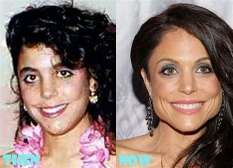 bethenny frankel plastic surgery before and after bethenny frankel plastic surgery before after pictures