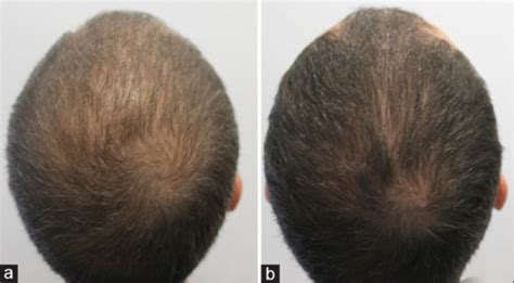 dutasteride for hair loss the end of hair loss and balding by 2020 a hair loss blog