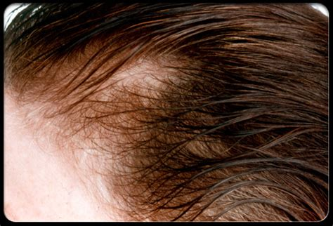 womans hair thinning on sides 18 june 2010 sitik s blog