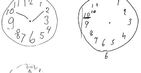 Drawing Quiz by Sleep And Neurology Dementia Clocks
