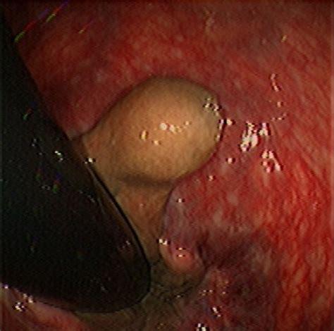 hemorrhoid images hemorrhoid fibrosed flickr photo