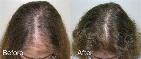 african american female thinning hair in the crown female hair loss it can be corrected