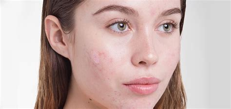 Acne Advice Blemish Free Skin by Acne Blemish Cult