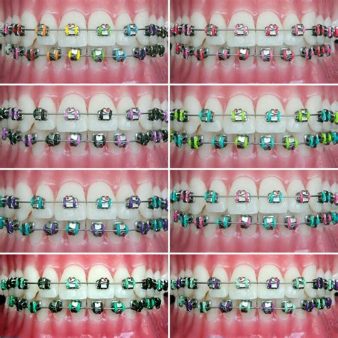 braces color ideas some pretty colors i like braces braces dental braces