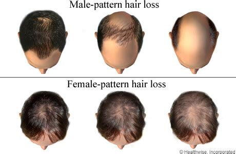 the female pattern hair loss review of pathogenesis and diagnosis inherited hair loss