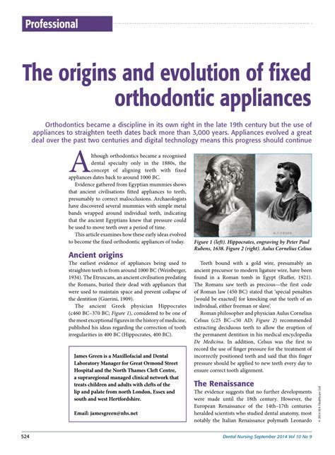 the origins and evolution of fixed orthodontic appliances