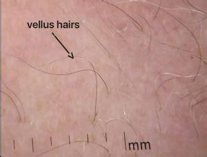 trichoscopy  hair loss neograft hair transplantation