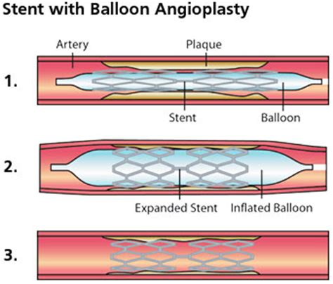 coronary angioplasty with or without stent implantation cardiovascular thoracic institute