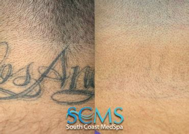 free tattoo removal los angeles laser removal gallery south coast medspa and
