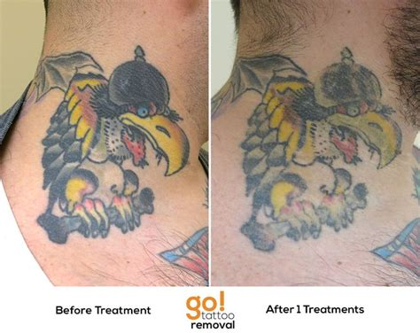tattoo removal hton roads 10 best images about removal in progress on