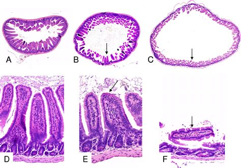 histological sections histological sections of the small intestines of mice that