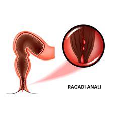 alimentazione ragadi ragadi anali cause trattamenti e prevenzione issalute
