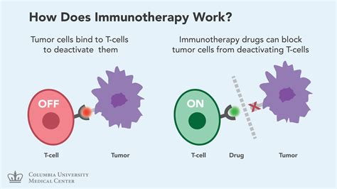 immunotherapy and radiation a new immunotherapy new for patients with advanced lung cancer