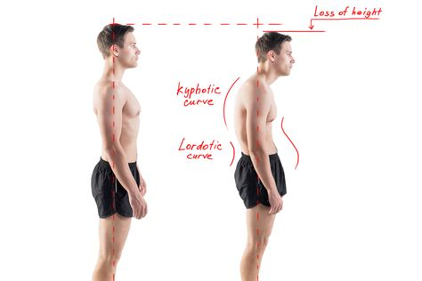 how to a better posture what is posture physiotherapy total physiocare