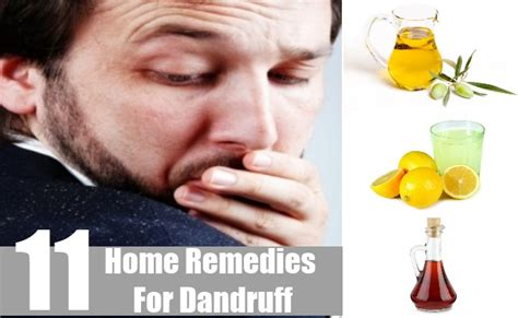 Dandruff Home Remedies And Natural Cures For Common | 11 best home remedies for dandruff natural treatments