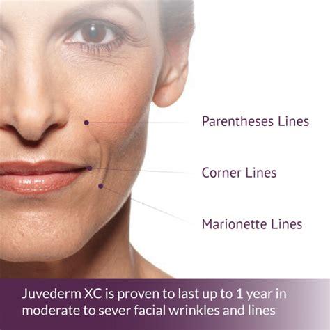 juvederm model juvederm collection of dermal fillers concierge