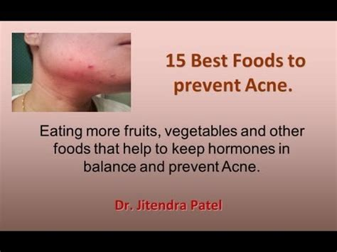 15 Top Foods To Get Rid Of Acne by Health 15 Best Foods To Prevent Acne