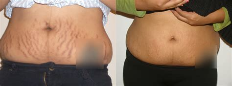 laser surgery stretch mark removal fraxel stretch mark