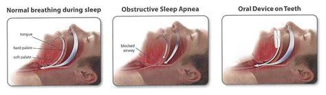 Sleep Apnea by Falls Dental Care Sleep Apnea Snoring Treatment
