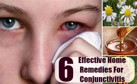 6 effective home remedies for conjunctivitis how to cure