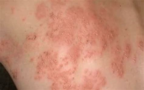 rash on rashes on back www pixshark images galleries with a bite