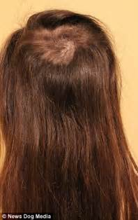 trichtolimania short thick hair pulling short hairstyles to hide trichotillomania how to hide