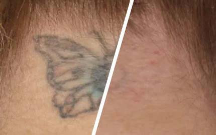 skin renew laser tattoo removal skin renew picosure skin treatment specialist essex