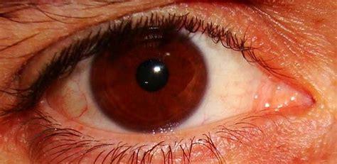 vedere mosche volanti cause occhi una nuova tecnica toglie le mosche volanti dalla