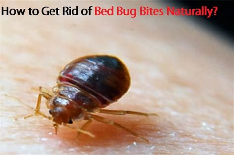 how to treat bed bug bites on human skin how to get rid of bed bug bites naturally