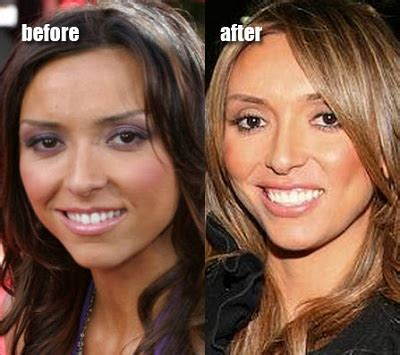 what is wrong with giuliana rancic face giuliana rancic denies the statement about plastic surgery