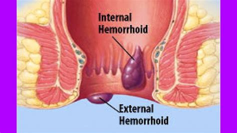 how to remove external hemorrhoids without surgery home