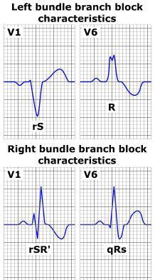 bundle branch block medrevise