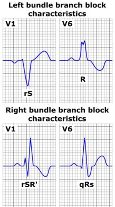 lbbb pattern branch block lbbb right bundle rbbb arrhythmia pictures