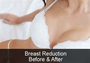 Breast Reduction If The Exercises Work For You Then There Will Be No Need