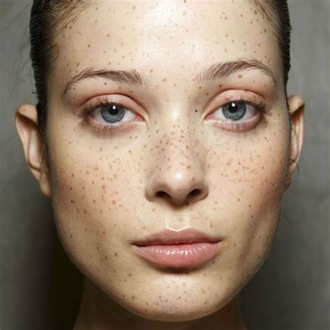 tattoo away freckles freckles are the new quot it quot beauty mark freckles