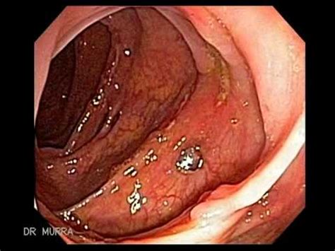 Colonoscopy Also Search For Colonoscopy Of Crohn S Disease