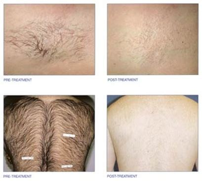 diode laser hair removal before and after before after pictures