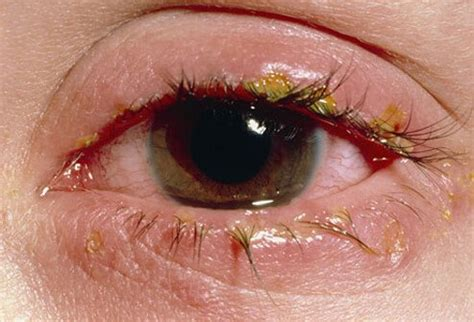 my eye is red watery and sensitive to light pink eye conjunctivitis symptoms causes treatments