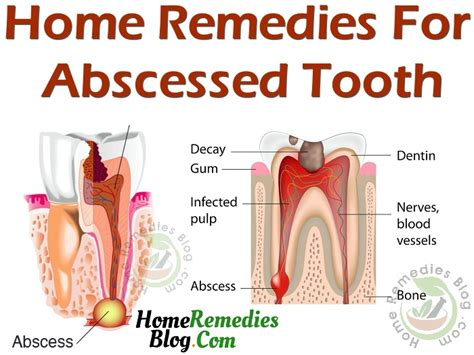 11 effective home remedies for abscess tooth home