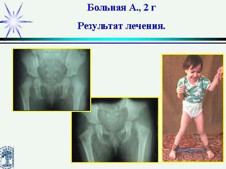 Больная Алиева Гуля