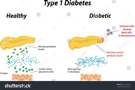 diabetes diagram type 1 diabetes labeled diagram stock vector 212467696