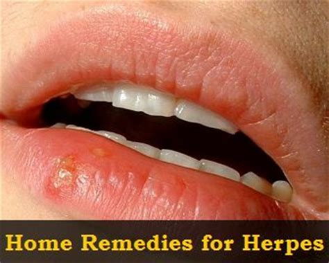 191 best images about remedies on remedies
