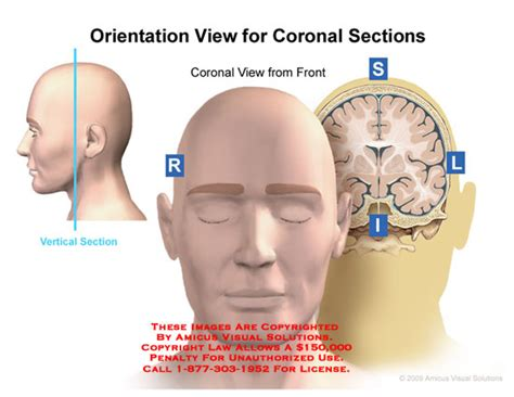 coronal sections orientation view for coronal sections