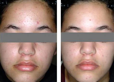 blue light therapy acne before and after blu u blue light and levulan combination acne treatment