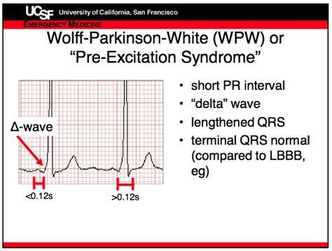 wolff parkinson white pattern ecg wpw