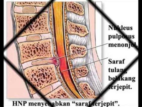 Obat Herbal Lumbar Pillow syaraf videolike