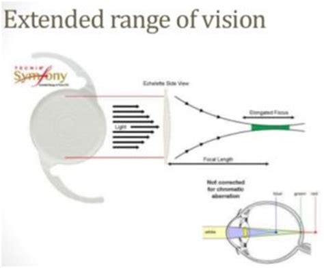 focus blog: intraocular lenses and how technological